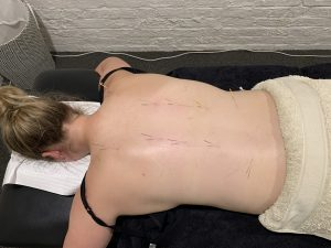 massage therapy - dry needling