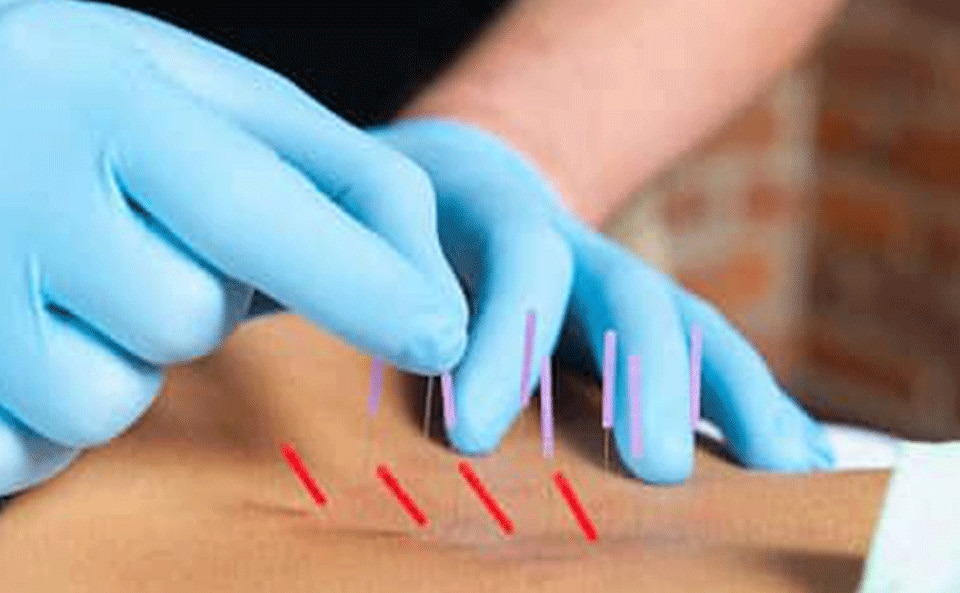 Dry Needling patients back