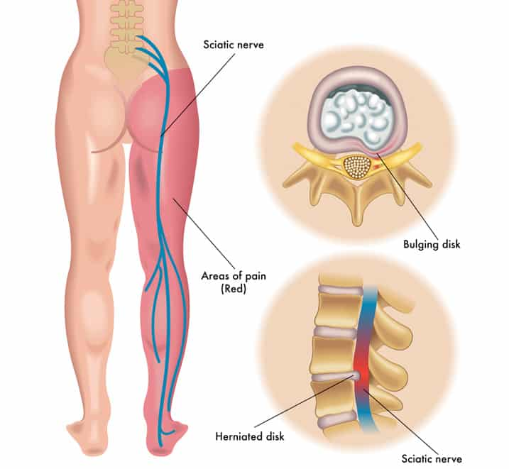 Lower leg and sciatic nerve area of pain